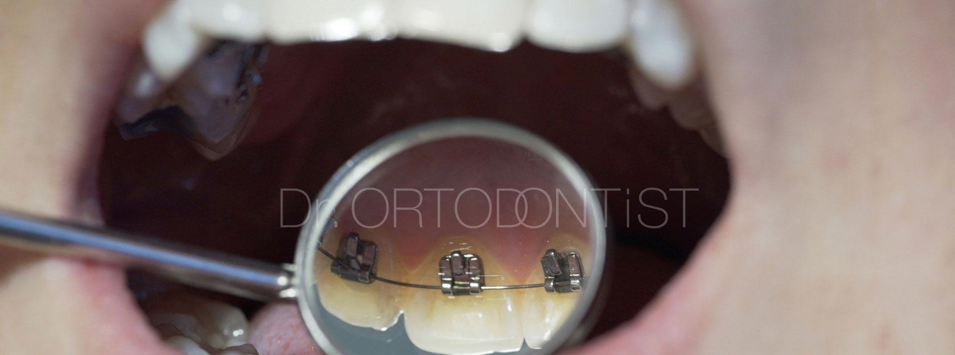 Erişkin Ortodontisinde Estetik Alternatifler